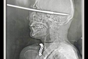 Este hombre se pegó un tiro mientras limpiaba su ballesta. Pese a lo que se ve en la radiografía resultó sin ningún daño cerebral, y vivió para contar su historia. Foto:Reproducción. Imagen Por: