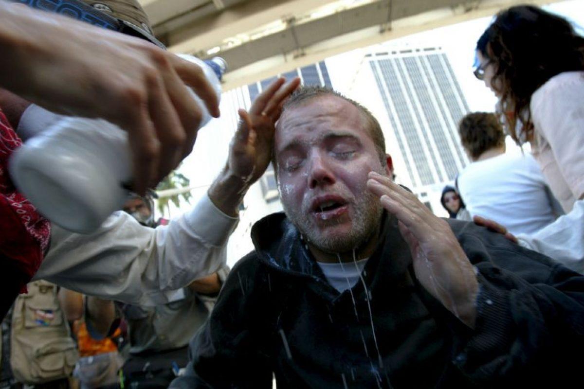 Pero en realidad sufrió un ataque respiratorio. Foto:Getty Images. Imagen Por: