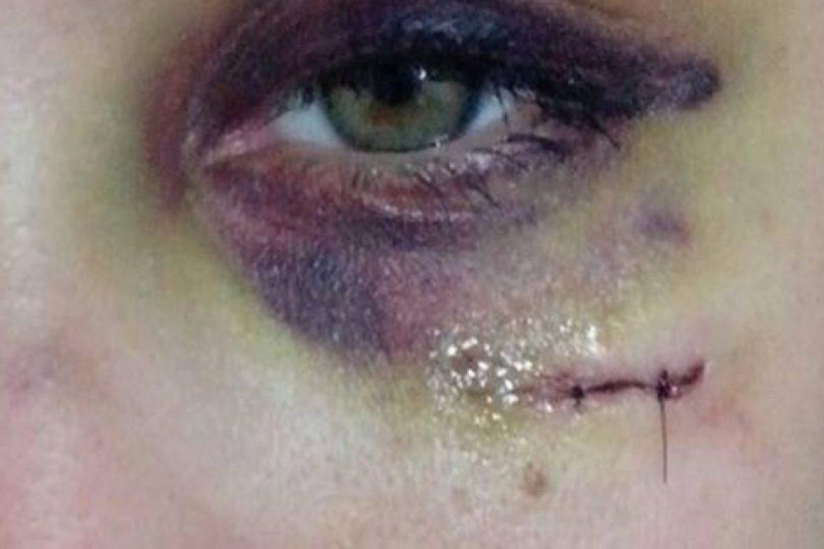 """La joven confirmó que está amenazada por su novio, aunque ya hizo la denuncia policial. Su caso podría equipararse a los que sucedieron en Estados Unidos y que dieron forma al proyecto """"Project Unbreakable"""". Foto:vía Facebook. Imagen Por:"""