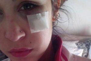 Nadia Rey, de Chacabuco, Argentina, publicó la foto que muestra cómo su novio casi destroza su ojo. Este se hizo viral. Foto:vía Facebook. Imagen Por: