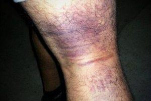 Posteó una lesión que tuvo durante un partido en tercera división Foto:Vía twitter.com/juanmauri. Imagen Por: