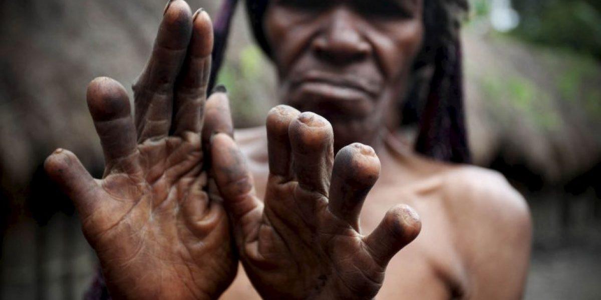 Este hombre vivió con su mano cosida al pie durante un mes