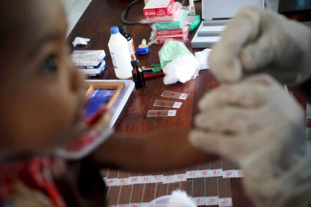 """3. Según """"Medline Plus"""", los primeros síntomas aparecen de 10 días a cuatro semanas de la infección. Foto:Getty Images. Imagen Por:"""