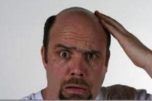 Falacrofobia: Aversión a la calvicie Foto:Reproducción. Imagen Por: