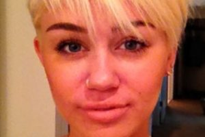 Miley Cyrus también tiene acné. Así se mostró en las fotos. Foto:vía Instagram. Imagen Por: