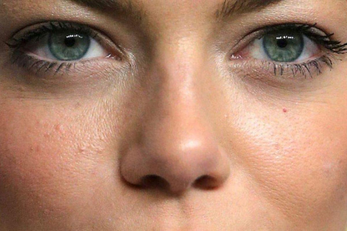 Emma Stone también tiene lo suyo, incluido acné. Foto:vía Getty Images. Imagen Por: