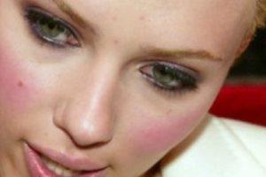 Si, la adorada Scarlett Johansson también tiene. Pero los granos de ella hasta lucen lindos. Foto:vía Getty Images. Imagen Por: