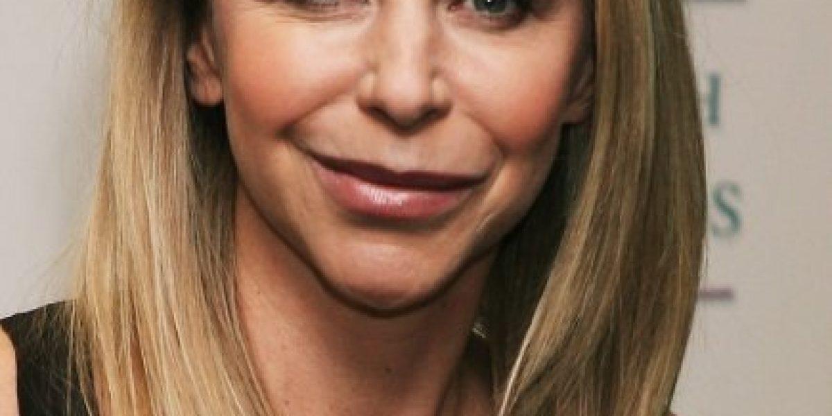 9 famosas con cirugías plásticas que terminaron muy mal