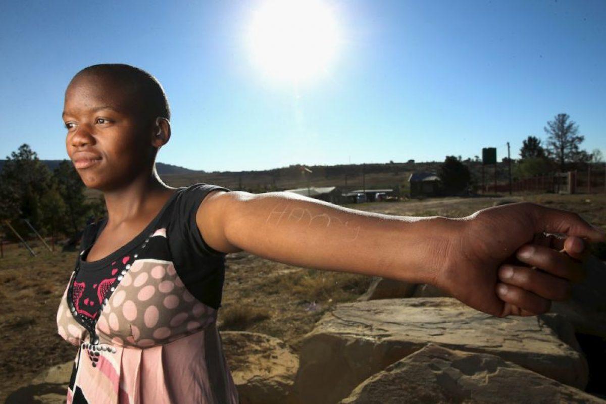 El propósito es controlar o mitigar la sexualidad femenina. Foto:Getty Images. Imagen Por: