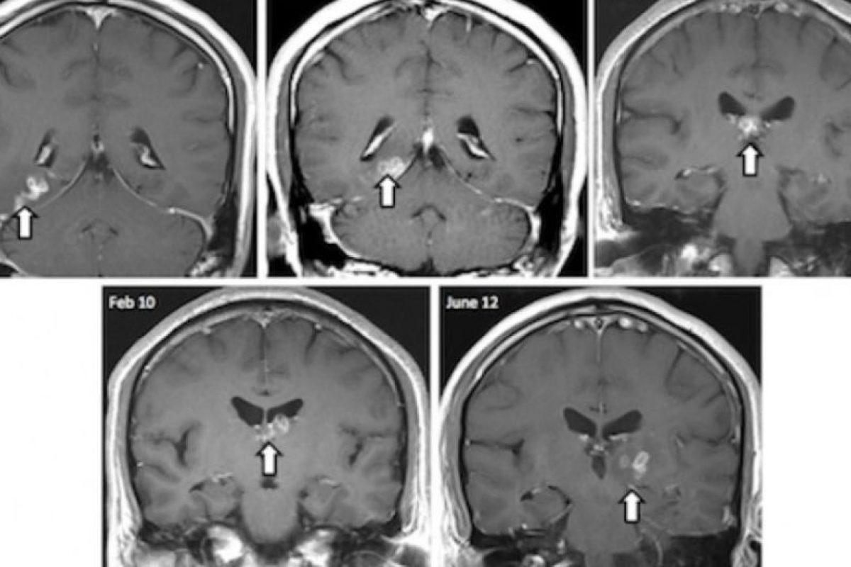 Existen gusanos que pueden llegar hasta el cerebro humano, tal como lo muestra esta tomografía. Foto:Vía Genome Biology. Imagen Por: