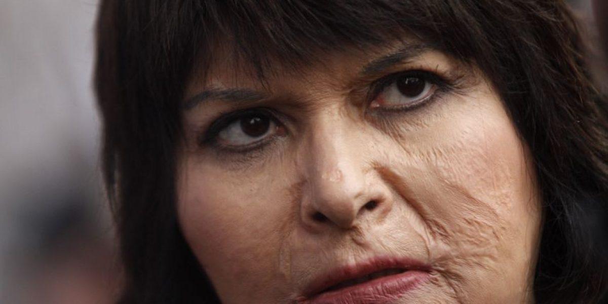 Caso Quemados: así fue el duro relato de Carmen Gloria Quintana en TV