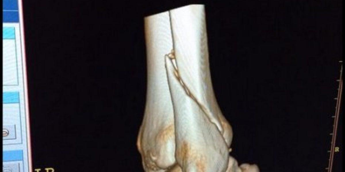 ¡Qué dolor! Aníbal Carvallo fue operado tras escalofriante lesión