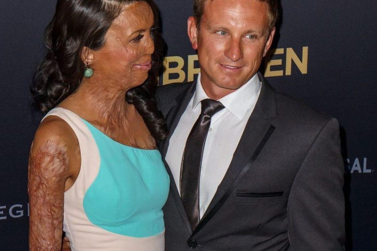 Su pareja le demostró que lo que siente es amor de verdad y se quedó junto a ella a pesar de todo Foto:Vía instagram.com/turiapitt/. Imagen Por: