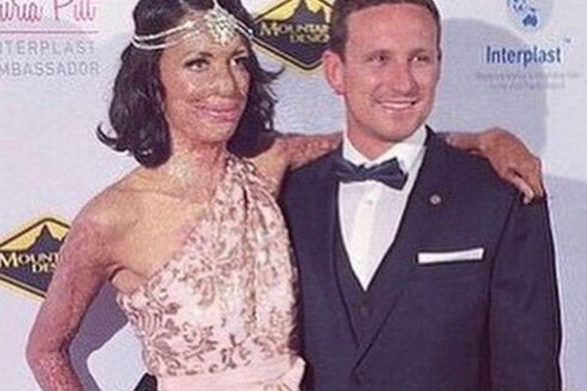 Pero a los 23 años fue víctima de un incendio que la dejó con el 65% de su cuerpo quemado Foto:Vía instagram.com/turiapitt/. Imagen Por: