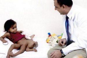 En 2007 una niña india de nombre Lakshmi, entonces de dos años, nació con cuatro brazos y cuatro piernas, fue sometida a una delicada operación quirúrgica para remover las extremidades. La operación duró 27 horas y fue un éxito Foto:Desconocido. Imagen Por: