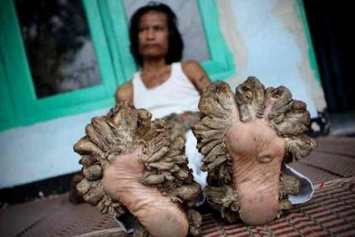 """Dede Koswara, mejor conocido como el """"Hombre árbol"""", en Indonesia, Se ha sometido a nueve operaciones para quitarse las verrugas que le crecen sin cesar porque padece del Virus del Papiloma Humano Foto:Vía www.dogguie.net. Imagen Por:"""