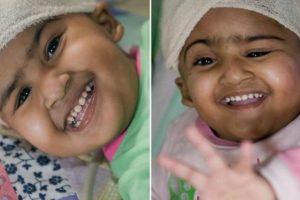 Trishna y Krishna nacieron en Bangladesh y son siamesas. Fueron separadas a los dos años de edad sin ningún tipo de daño cerebral Foto:Getty Images. Imagen Por: