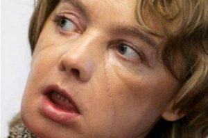 En noviembre de 2007, la francesa Isabelle Dinoire se convirtió en la primera mujer del mundo en recibir un trasplante parcial de cara. Se quedó dormida y su perro le mordió el rostro Foto:Vía BBC. Imagen Por: