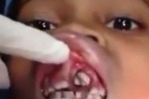"""Ana Cardoso, una niña brasileña de solo 10 años solo sentía que algo se """"movía"""" en su boca. Luego de decirle a su madre e ir a médico, encontraron varios gusanos dentro de su encía. Foto:Vía Youtube. Imagen Por:"""