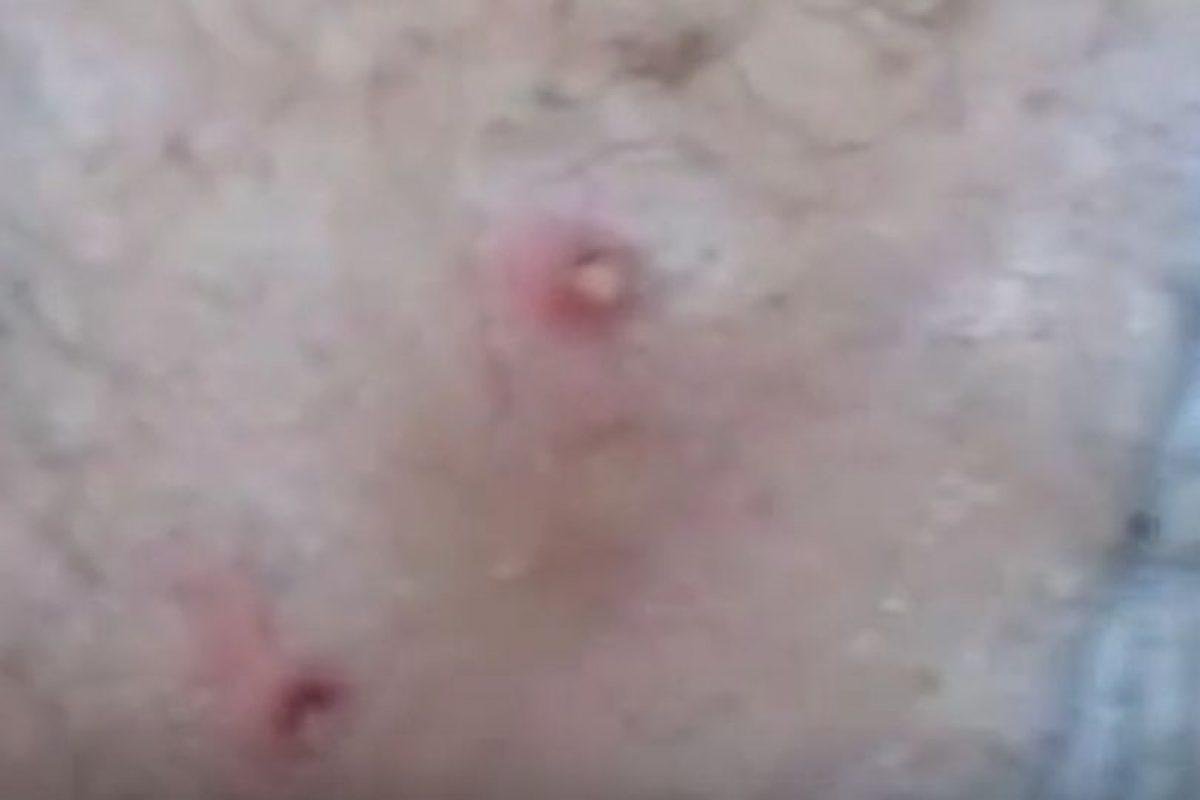 Este joven tenía larvas de mosca en la espalda Foto:Vía Youtube. Imagen Por: