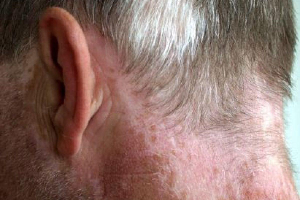 Esta enfermedad afecta por igual a los hombres y a las mujeres de todas las razas. Foto:Wikipedia. Imagen Por: