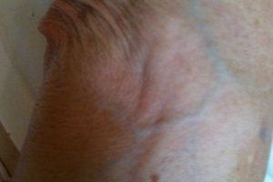 Con el vitíligo, el sistema inmunitario puede destruir los melanocitos de la piel. También es posible que uno o más genes aumenten la probabilidad de que una persona padezca la enfermedad. Foto:Wikimedia. Imagen Por: