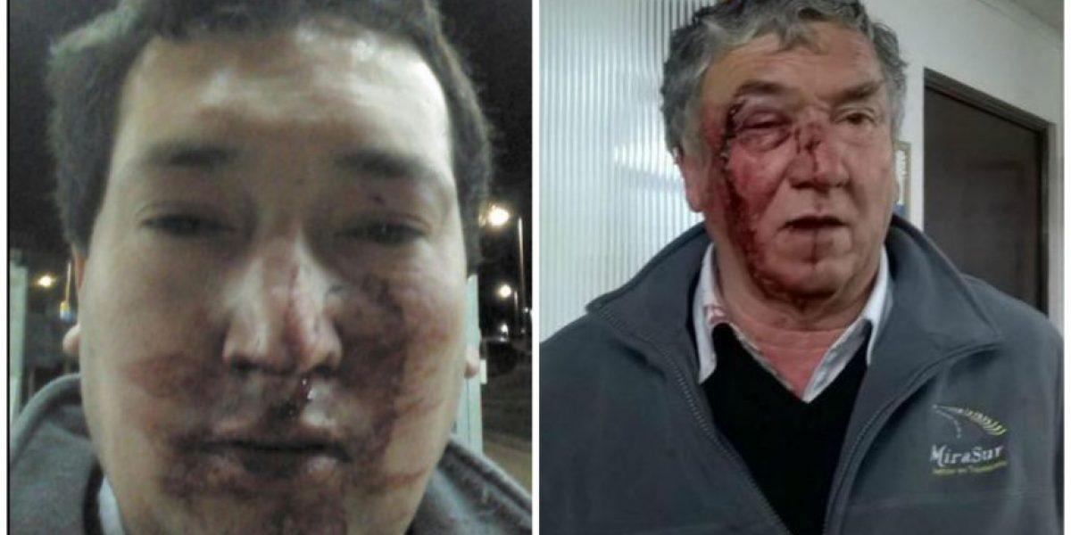 Denuncian brutal golpiza de parte de camioneros paralizados en Lo Vásquez