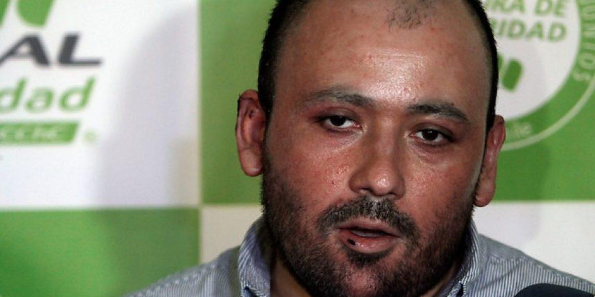 Cajero quemado vivo en Hualpén recibe alta médica y sale del hospital