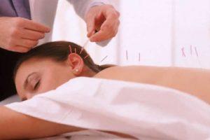 Los resultados mostraron que en condiciones como dolor de cabeza crónico, la acupuntura era dos veces tan eficaz como los medicamentos y el ejercicio recomendado por la mayoría de los médicos.. Imagen Por: