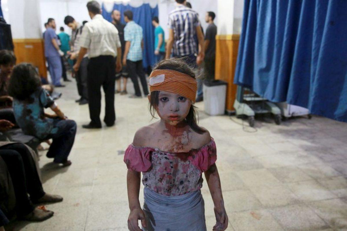 Niña herida tras ataques aéreos en Siria. Foto:AFP. Imagen Por: