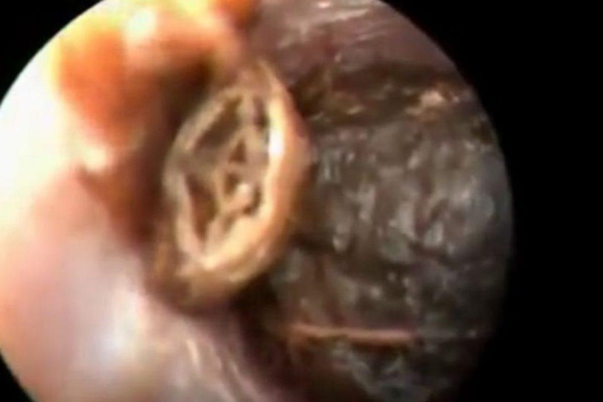 A este hombre le sacaron una cucaracha de la oreja Foto:Vía Youtube. Imagen Por: