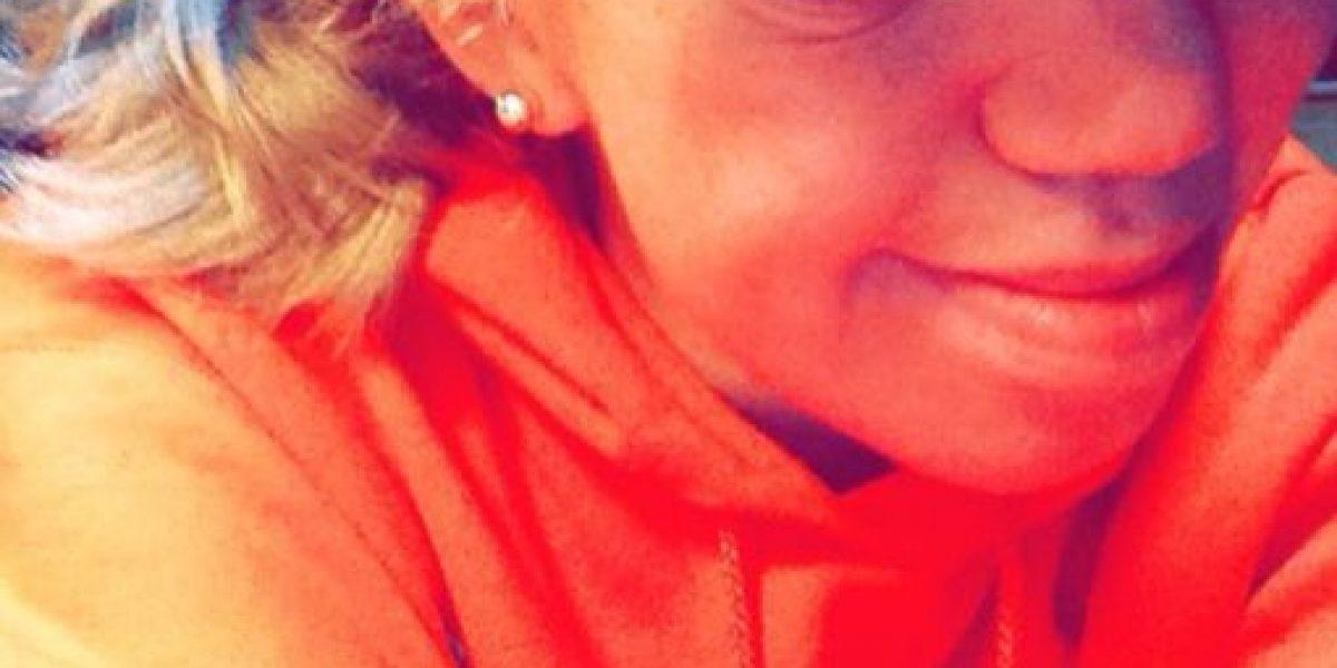 Fotos: La bella joven que conquista Instagram con su deformidad