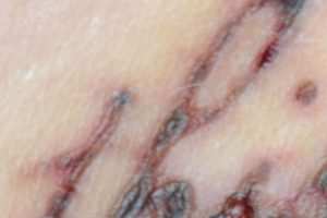 En última instancia, la cirugía láser y pastillas ayudarán a recuperar su piel dañada. Foto:vía Instagram/#infectedtatoo. Imagen Por: