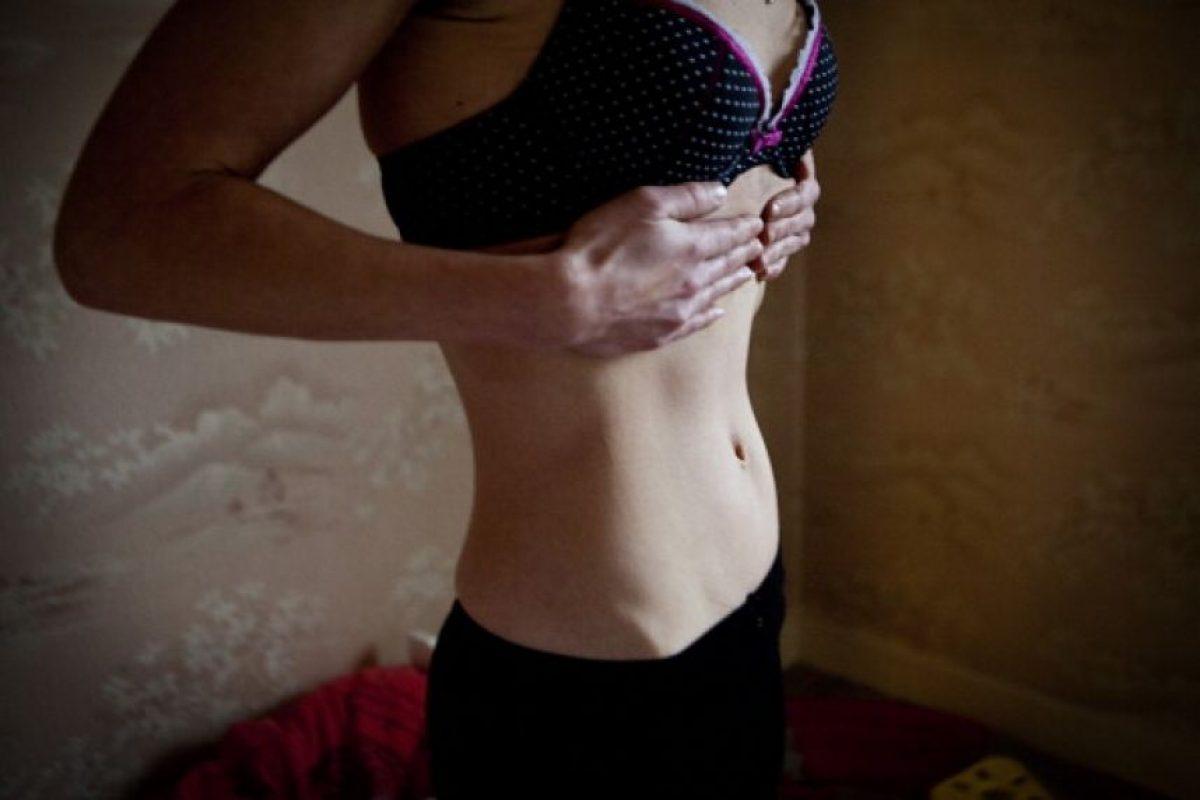 """""""Es interesante pensar cómo la promoción de estos ideales contribuye en el desarrollo de dificultades que antes no se veían tanto como la anorexia y la bulimia"""", comentó Joaquín Carrasco a nuestro medio. Foto:Getty Images. Imagen Por:"""