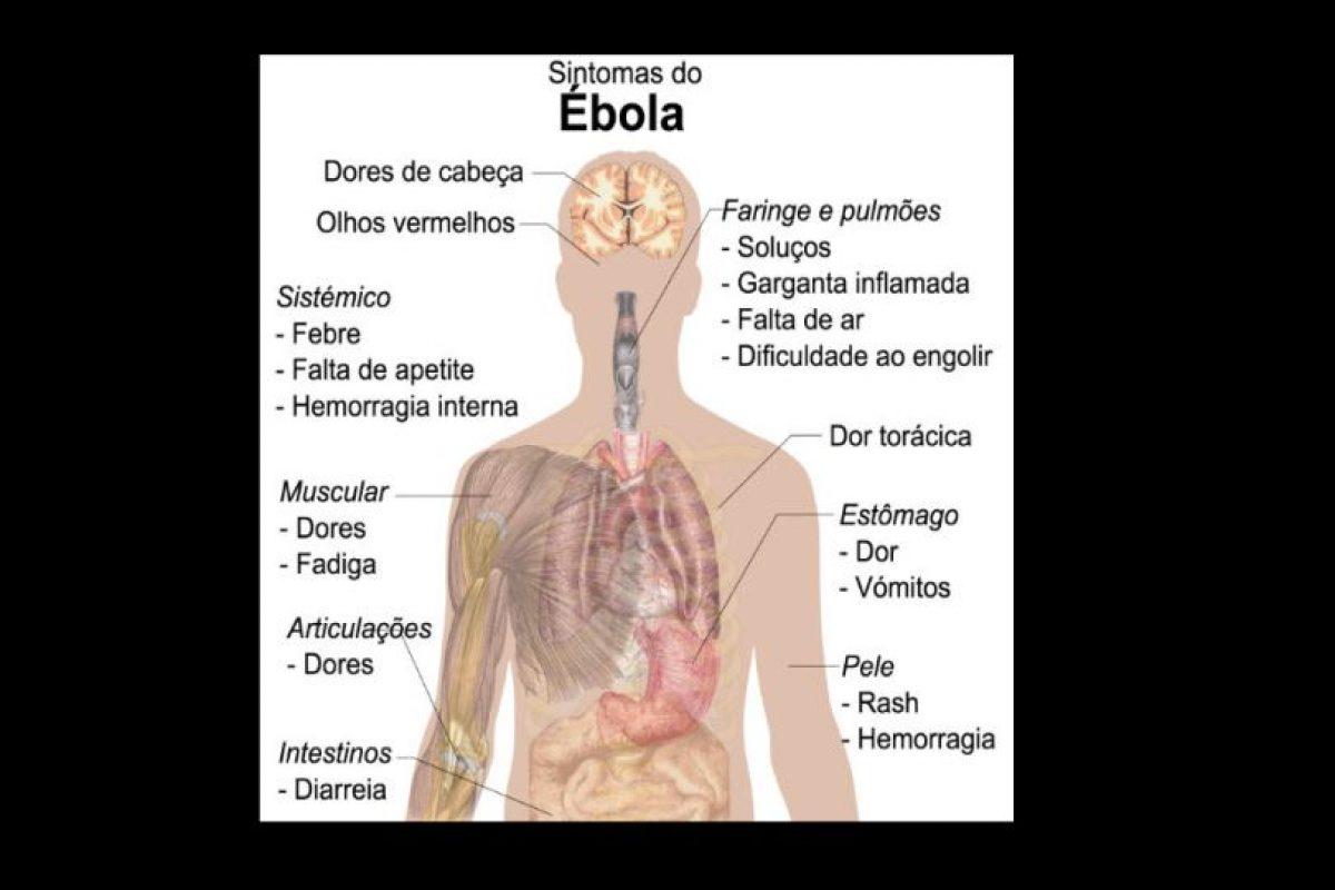 Es una enfermedad infecciosa muy grave que afecta a los seres humanos Foto:Wikicommons. Imagen Por: