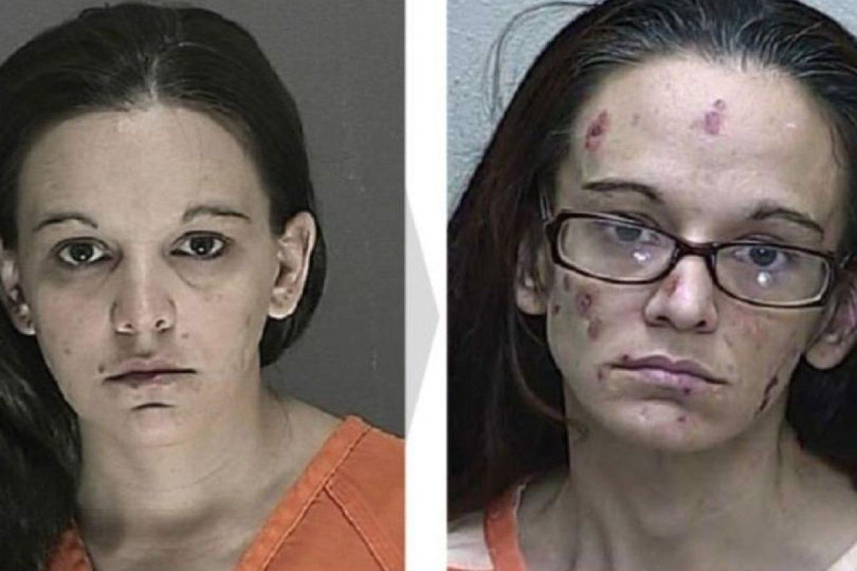 Antes y después Foto:Rrehabs. Imagen Por: