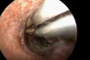 A este hombre le sacaron una cucaracha de la oreja Foto:Youtube. Imagen Por: