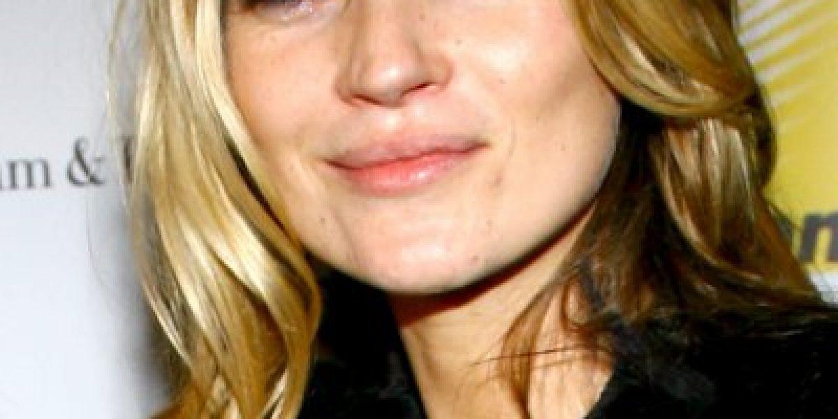 La belleza de la súpermodelo Kate Moss está desapareciendo