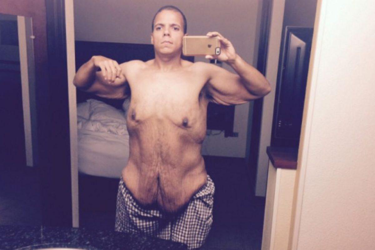 De esta manera perdió 120 kilos y ahora busca costearse una cirugía para removerse la piel sobrante. Foto:vía Jesse Shand. Imagen Por: