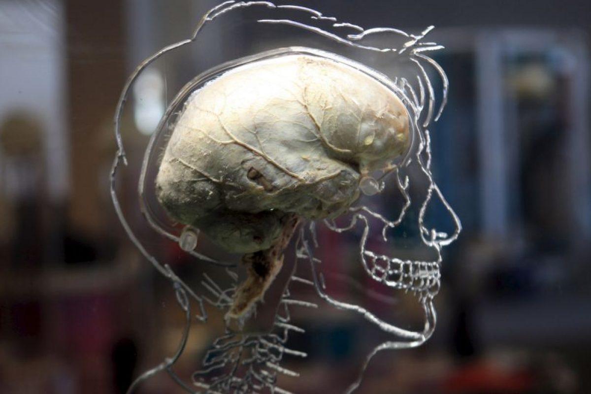 Aunque los ataques cerebrales son una enfermedad del cerebro, pueden afectar todo el cuerpo. Foto:Getty Images. Imagen Por: