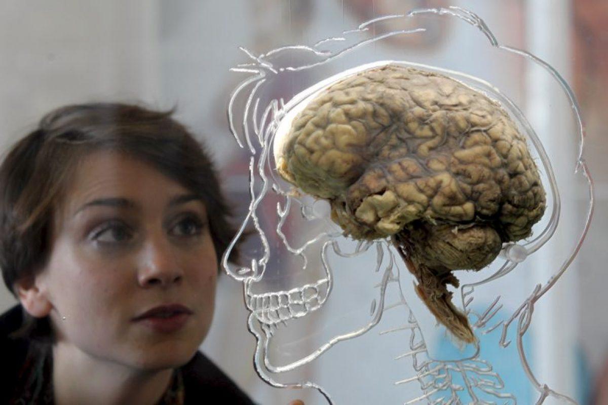 Cuando se presenta un ataque cerebral, un área del cerebro empieza a morir porque deja de recibir el oxígeno y los nutrientes que necesita para funcionar. Foto:Getty Images. Imagen Por: