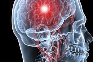 Hay dos clases principales de accidentes cerebrovasculares. El primero, llamado accidente cerebrovascular isquémico, es causado por un coágulo que bloquea u obstruye un vaso sanguíneo en el cerebro. Foto:Tumblr. Imagen Por: