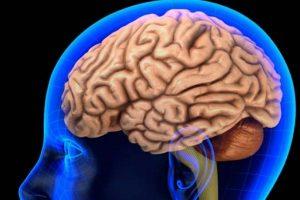 Los pacientes también pueden sentir dolor y adormecimiento después de un accidente cerebrovascular. Foto:Tumblr. Imagen Por: