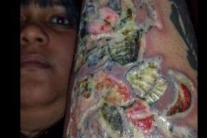 Mary Bates se hizo un tatuaje en Turquía, luego se infectó y este fue el resultado. Foto:Vía Instagram/@prgirlangelofficial. Imagen Por: