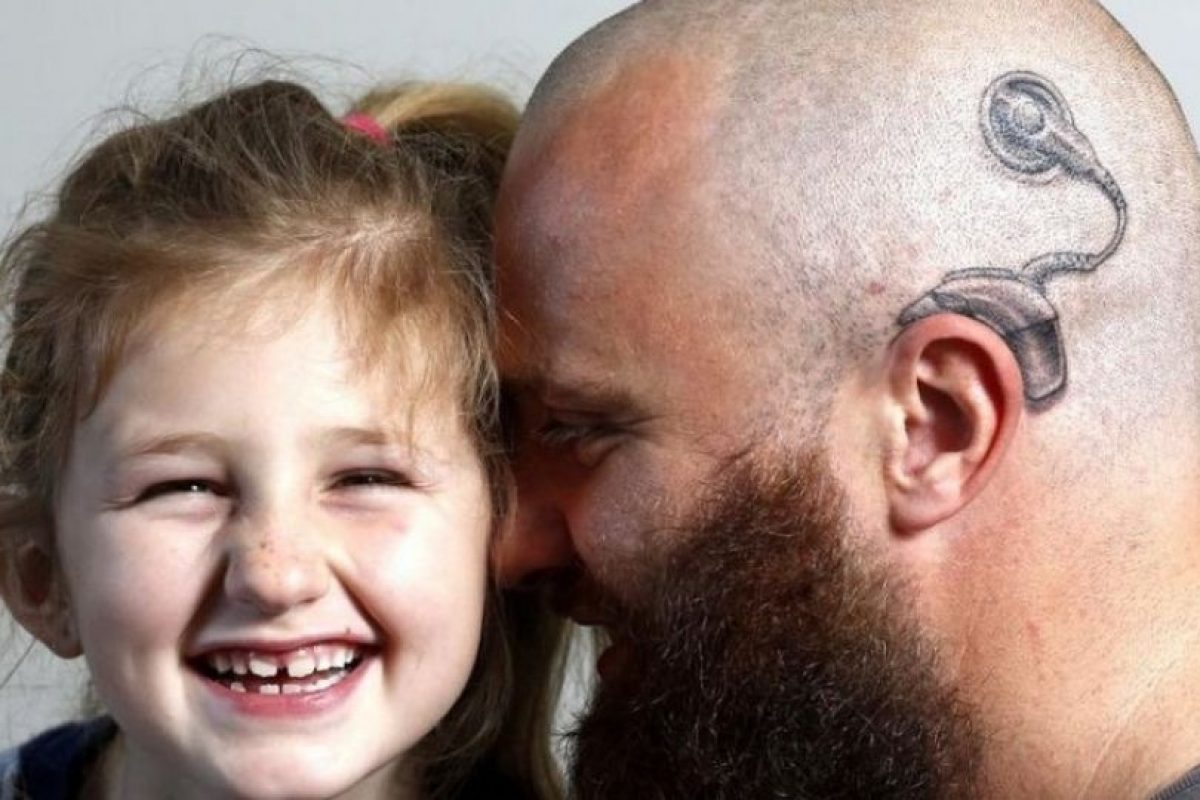 Alistair Campbell –padre de familia neozelandés– quería asegurarse de que su hija no se intimidara más por su nuevo aparato auditivo y decidió tatuarse uno en la cabeza. Foto:Vía Facebook/acebook.com/anitaalistair.campbell. Imagen Por: