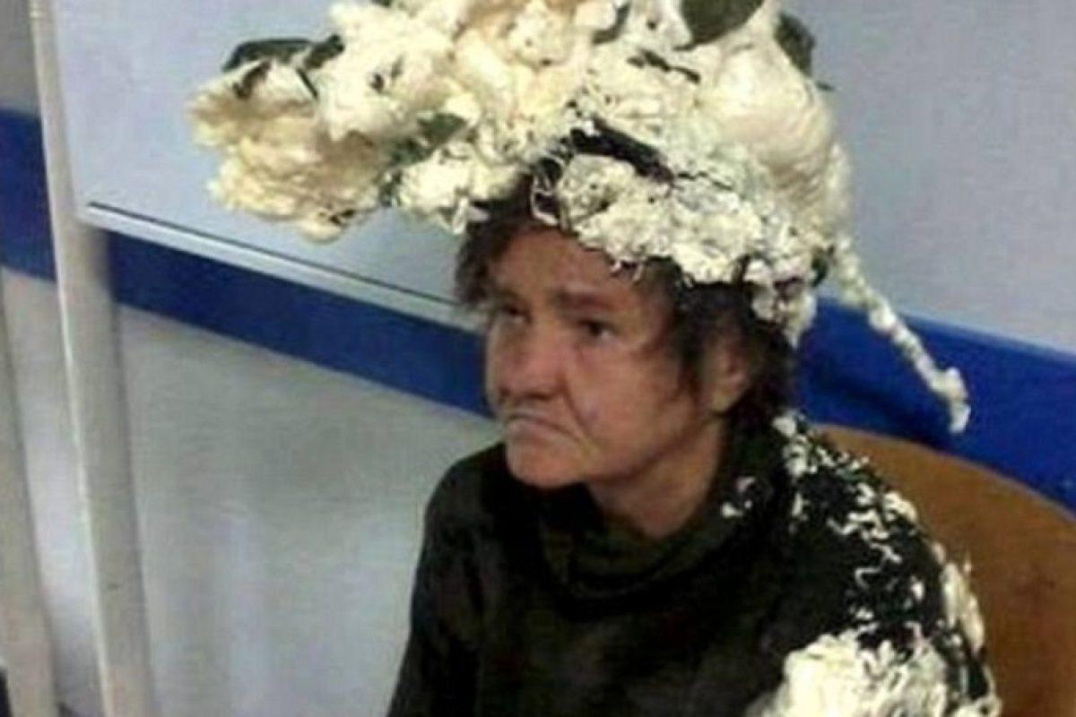 Siempre, pero siempre, fíjense en lo que puede pasar con sus productos para el cabello. Esta mujer cuya imagen recorre Internet usó espuma expansiva para construcción. Obvio, tuvo que ir al Hospital. Foto:vía Twitter. Imagen Por: