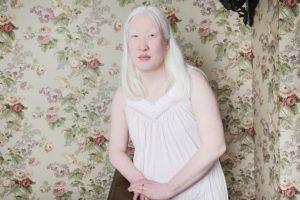 Las personas con albinismo pueden sufrir de aislamiento debido a que la condición no es comprendida Foto:Vía www.angelinadauguste.com. Imagen Por: