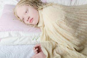 El albinismo consiste en la falta de producción de melanina en el cuerpo. Foto:Vía www.angelinadauguste.com. Imagen Por: