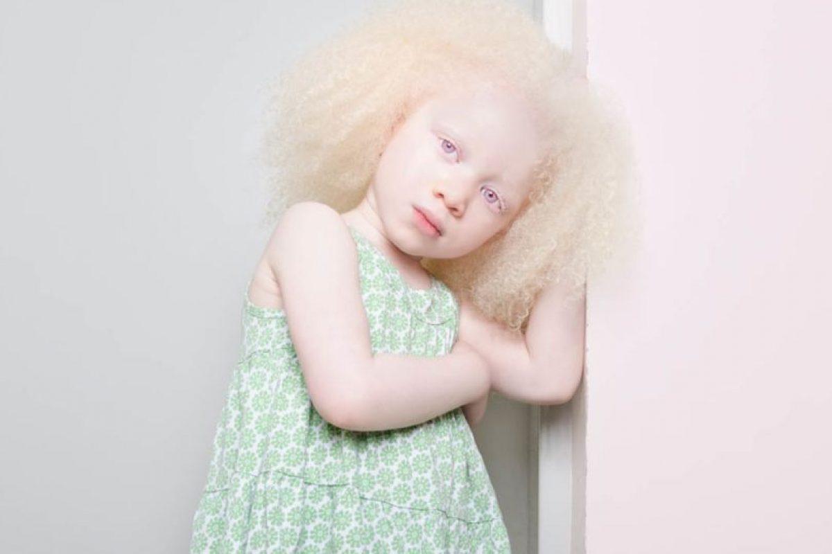 Generalmente se nota en el cabello, la piel y los ojos Foto:Vía www.angelinadauguste.com. Imagen Por:
