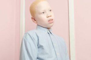 La fotógrafa Angelina D'Auguste quiso mostrar otra mirada sobre el albinismo. Foto:Vía www.angelinadauguste.com. Imagen Por: